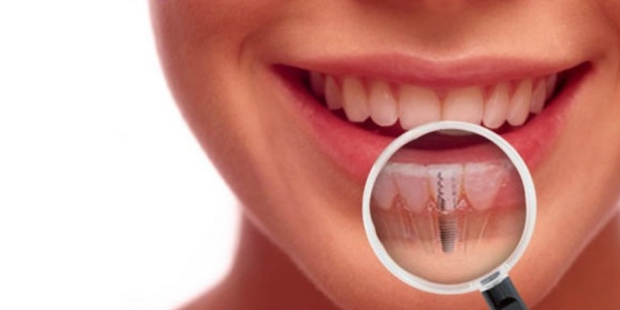 What Are The Best Dental Implant You Should Consider Getting?